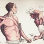 Désarticulation de l'épaule